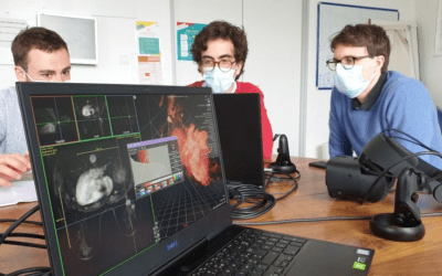 Brest University Hospital partners with AVATAR MEDICAL to do research on prostate cancers